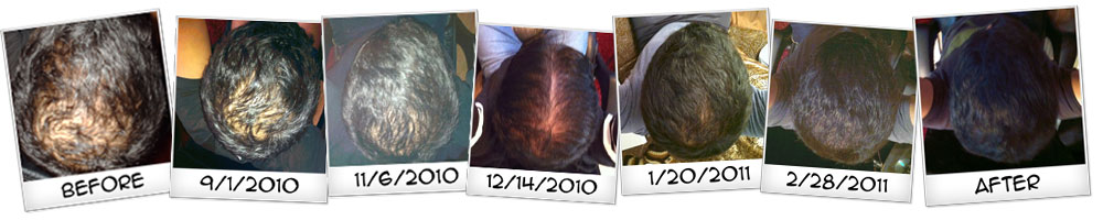Hair Genesis is the Best Natural Hairloss Treatment